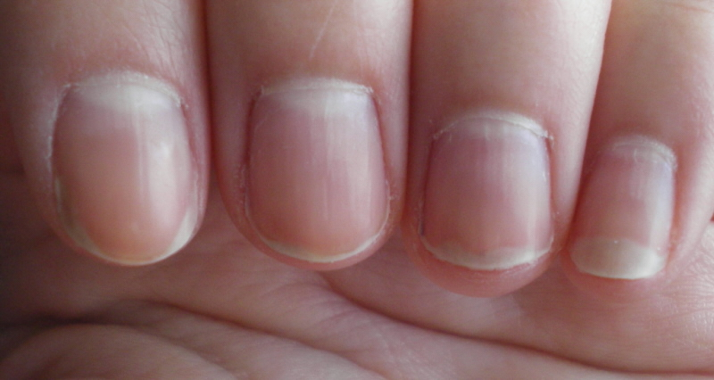 Those White Spots On My Nails The Side Of Index Uneven Nail Line Middle And Ring Tip Pinky Is Where