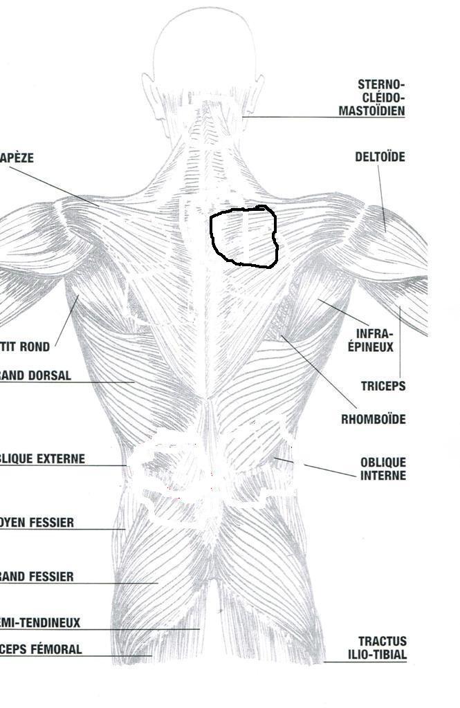 La douleur dans les iles du dos