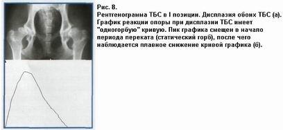 дисплазия одного тазобедренного сустава у србаки